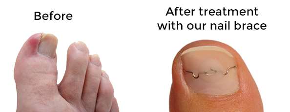 Ingrown Toenail Nail Brace